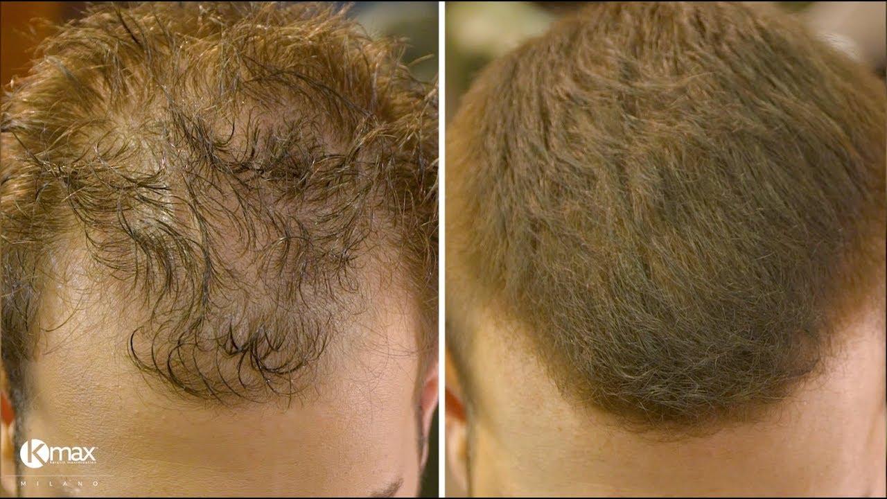 Voor en na gebruik Kmax haarvezels