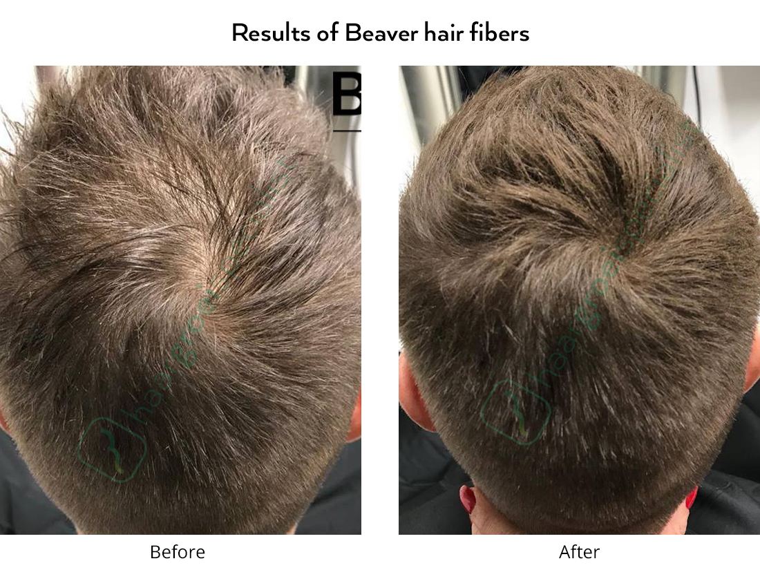 Results of Beaver hair fibers man