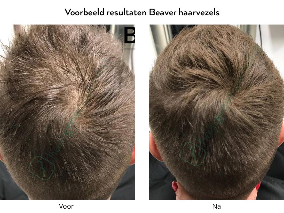 Voorbeeld resultaten Beaver haarvezels man