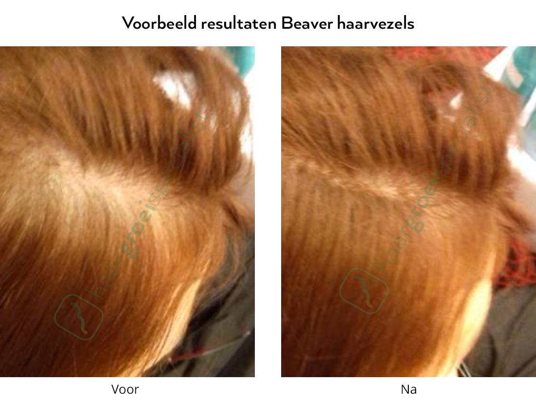 Voorbeeld resultaten Beaver haarvezels vrouw