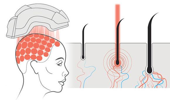 Werking van laserlicht bij haargroei