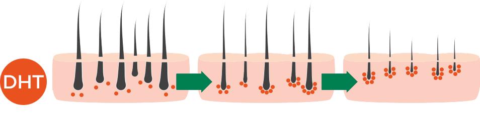 Hoe DHT de haarzakjes beschadigt