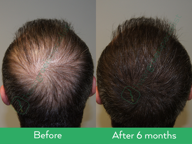 Kmax stimulating products before after results