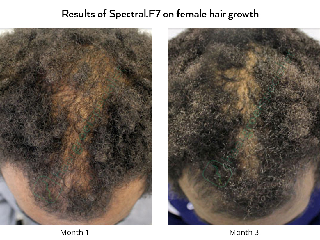 Results of Spectral.F7 on female hair growth