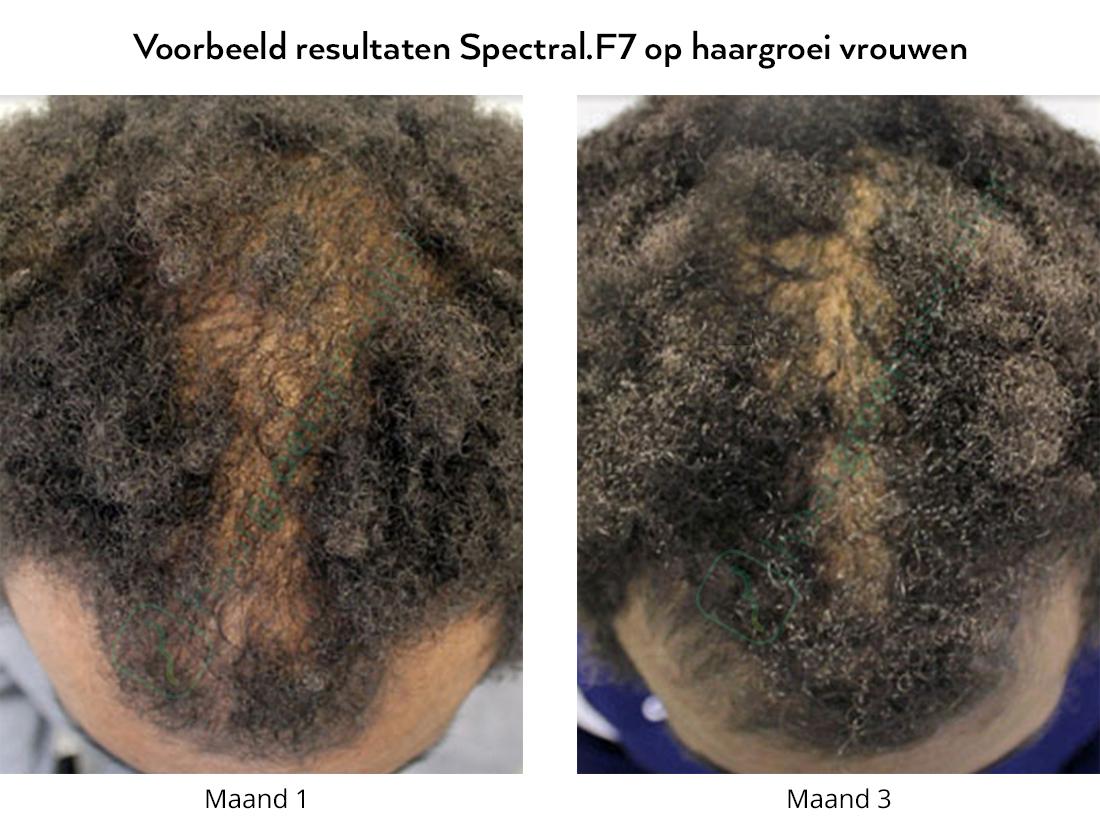 Voorbeeld resultaten Spectral.F7 lotion op haargroei vrouwen