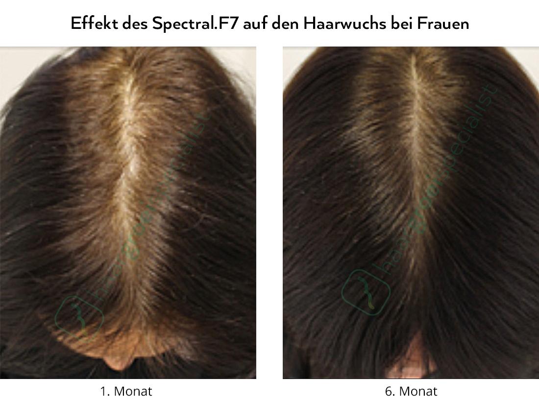Effekt des Spectral.F7 auf den Haarwuchs bei Frauen