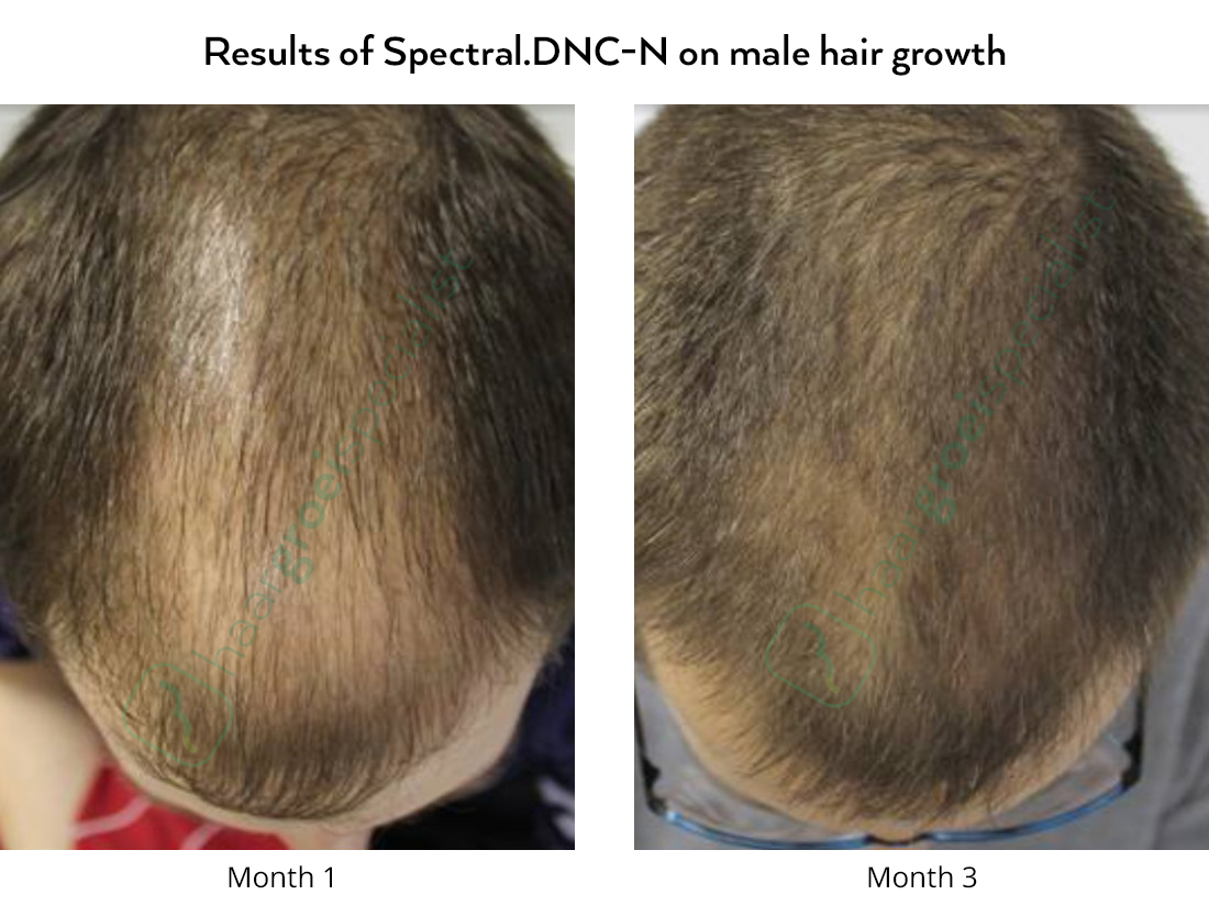 Before and after pictures, hair loss in men with Spectral.DNC-N Nanoxidil lotion