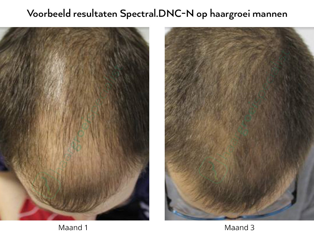 Voor en na foto's, erfelijk haarverlies mannen met Spectral.DNC-N Nanoxidil lotion