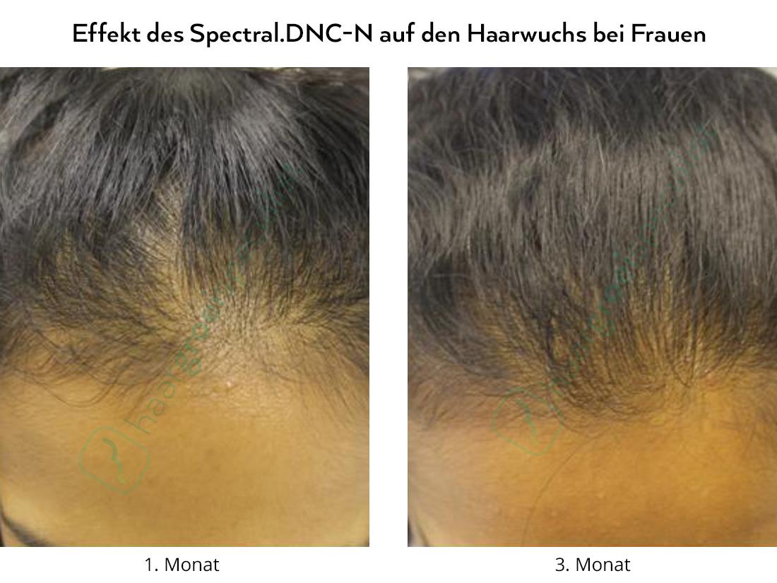 Effekt des Spectral.DNC-N auf den Haarwuchs bei Frauen