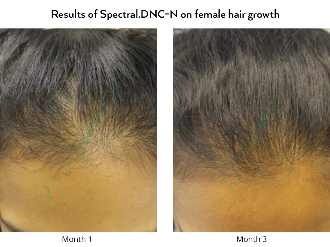 Before and after pictures, hair loss in women with Spectral.DNC-N Nanoxidil lotion