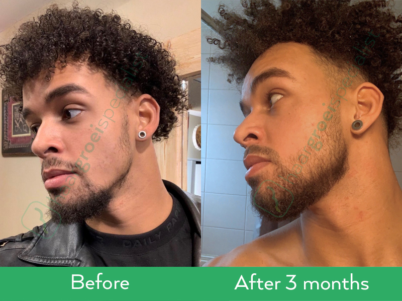 Neofollics beard growth serum before after results