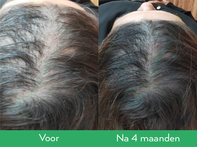 Resultaten Neofollics Anti-Grey Hair Tablets en Neofollics Hair Growth Tablets