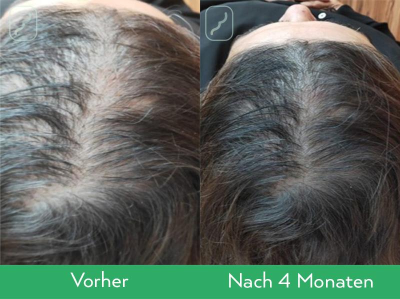 Neofollics Anti-Grau Haartabletten Ergebnisse Frau, nach 4 Monaten