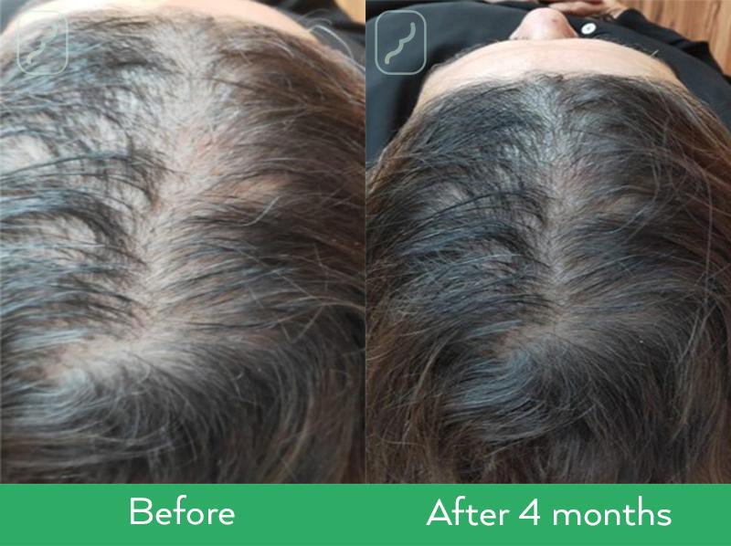 Resultaten Neofollics Anti-Grey Hair Tablets en Neofollics Hair Growth Tablets