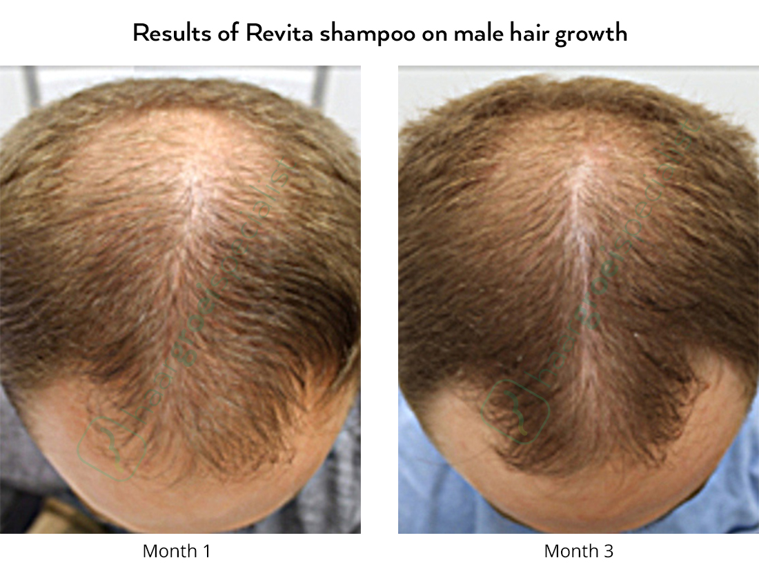 Results of Revita shampoo on male hair growth