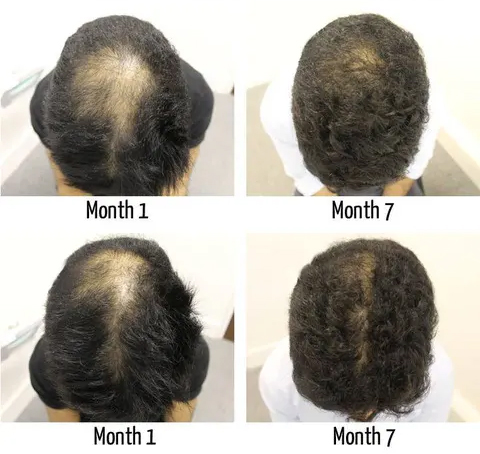 Male hereditary hair loss