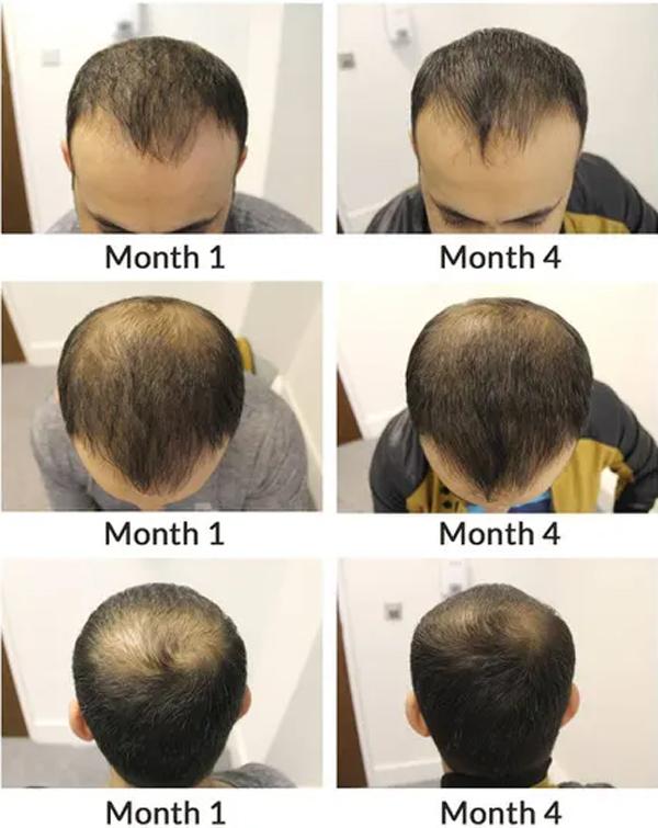 Male hereditary hair loss, AGA