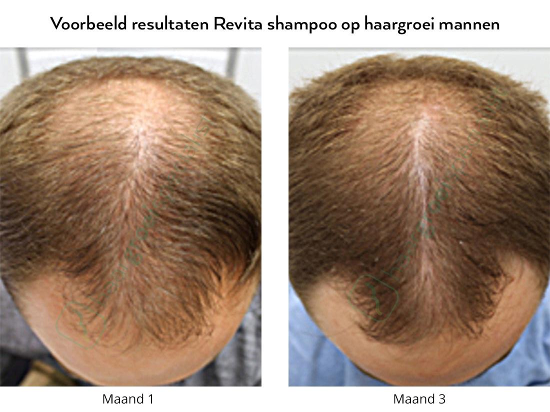 Voorbeeld resultaten Revita shampoo op haargroei mannen