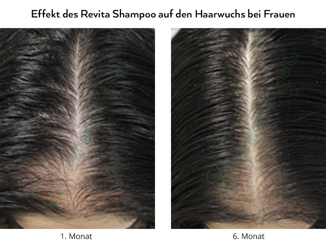 Effekt des Revita Shampoo auf den Haarwuchs bei Frauen