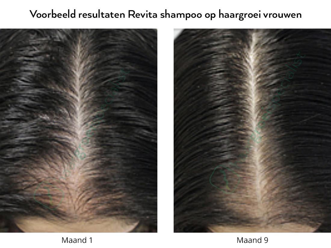 Voorbeeld resultaten Revita shampoo op haargroei vrouwen
