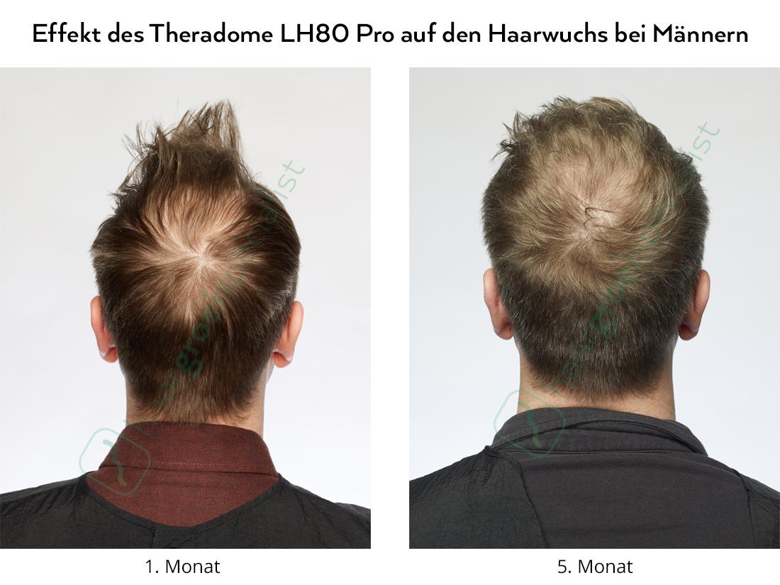 Effekt des Theradome LH80 Pro auf den Haarwuchs bei Männern
