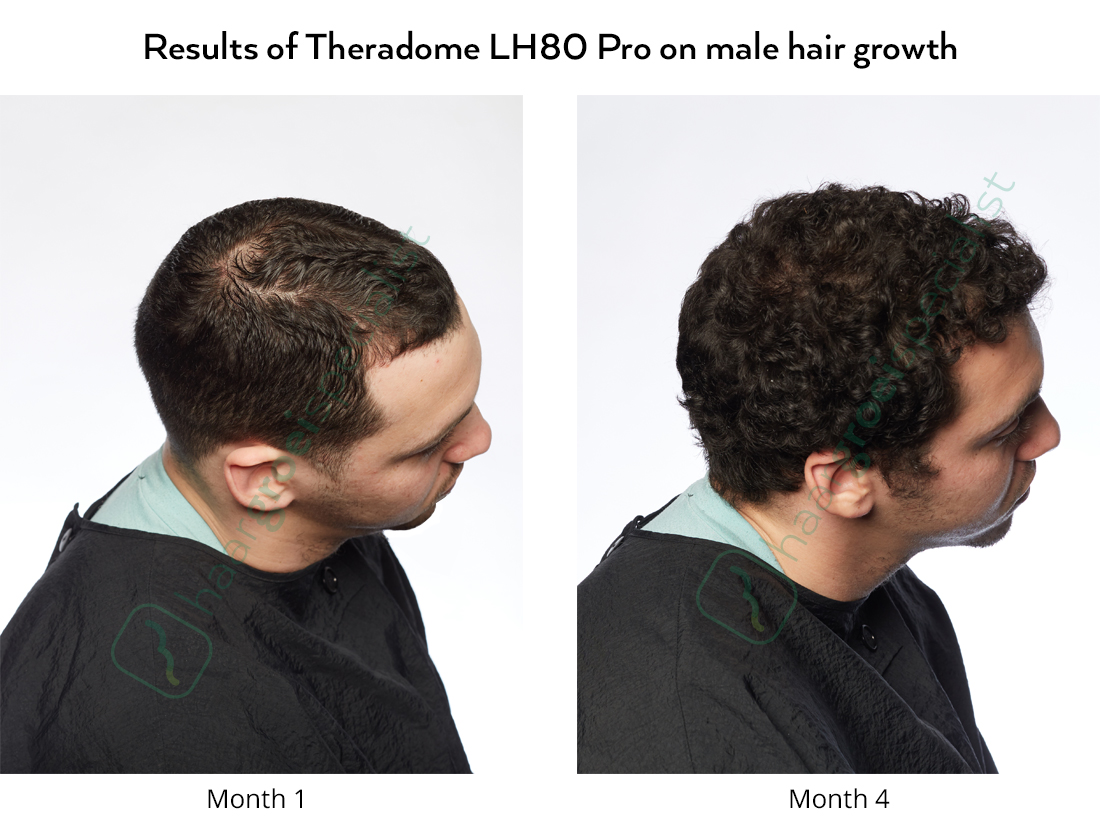 Results of Theradome LH80 Pro on male hair growth