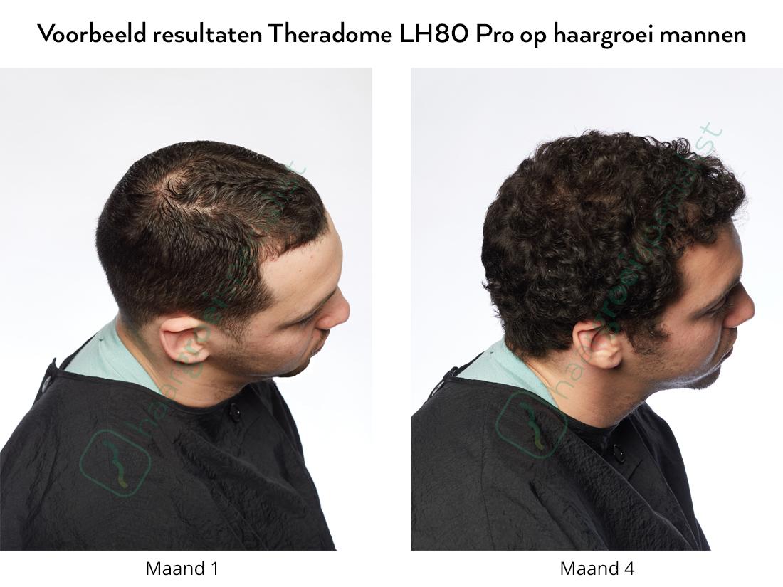 Voorbeeld resultaten Theradome LH80 Pro op haargroei mannen