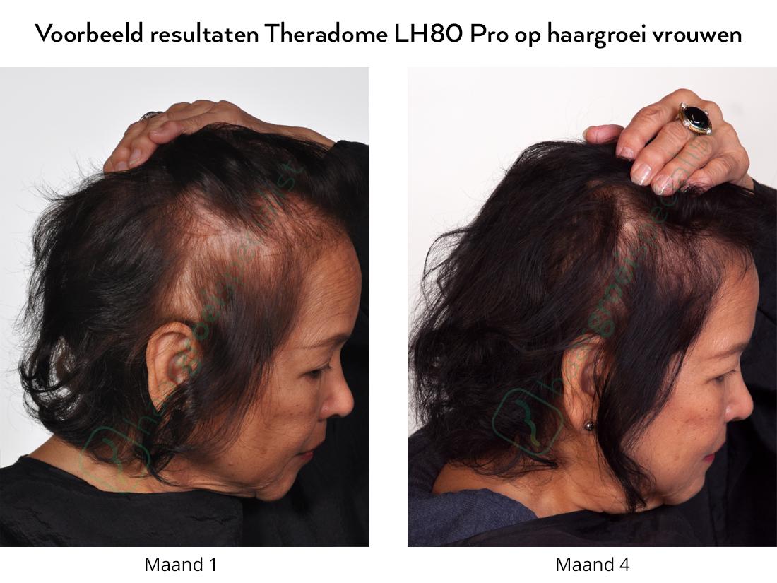 Voorbeeld resultaten Theradome LH80 Pro op haargroei vrouwen