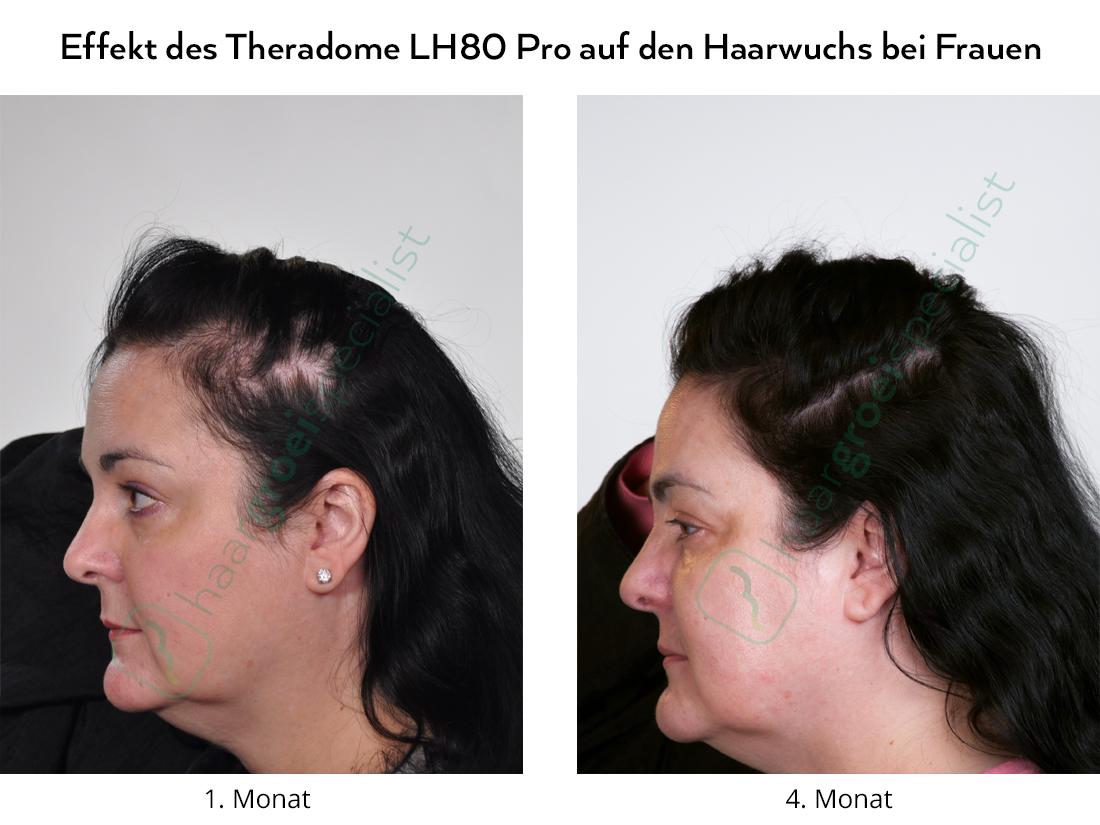Effekt des Theradome LH80 Pro auf den Haarwuchs bei Frauen